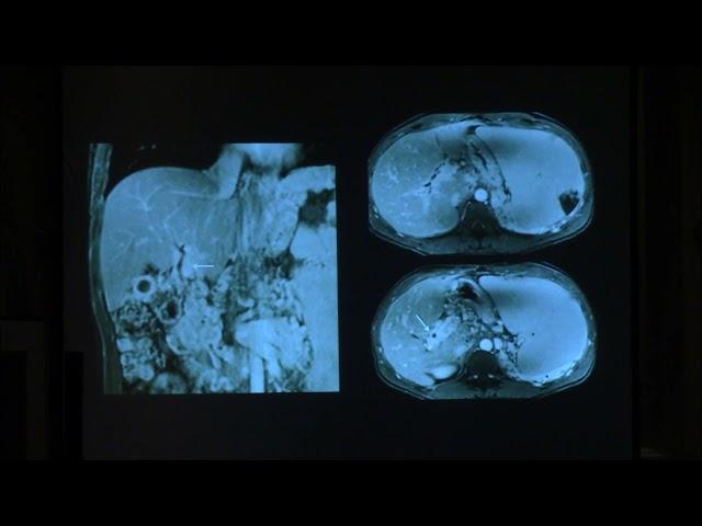 Hipertensión portal más allá de la cirrosis.  Diego Haberman