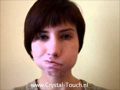 Невропатия лицевого нерва - Неврология