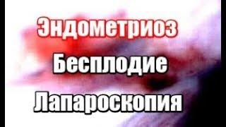 Эндометриоз доступным языком. Лечение эндометриоза. Лапароскопия.