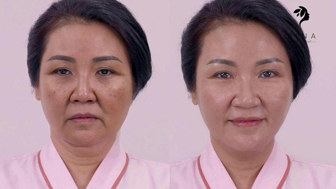 Bí quyết cho vẻ đẹp xuân sắc của mẹ chồng quốc dân Xuân Quỳnh - Thẩm mỹ viện Rina