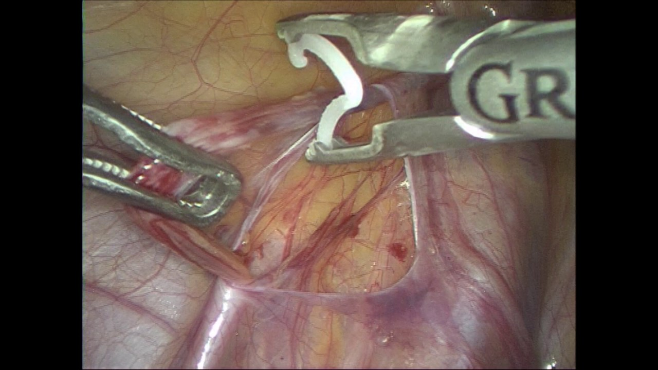Laparoscopic varicocelectomy using polymer ligating clips ...