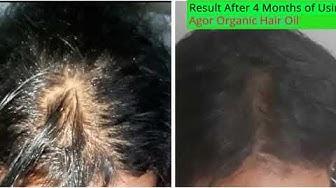 Agor Organic Hair Oil | ከ ደምበኞች ተመክሮቻቸው መመልከት እንችላለን | ንገለ ካብ ተሞክሮታት ዓማዊልና ንመልከት