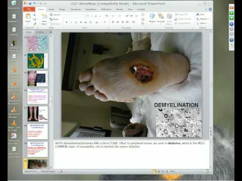 Medical School Pathology 2012 Session 074 Nerve-Muscle.mp4
