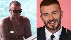 Haartransplantation von David Beckham?