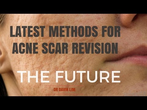 Acne Scar Treatments- future looks bright.