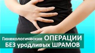Гинекологические операции.Эндоскопические гинекологические операции.