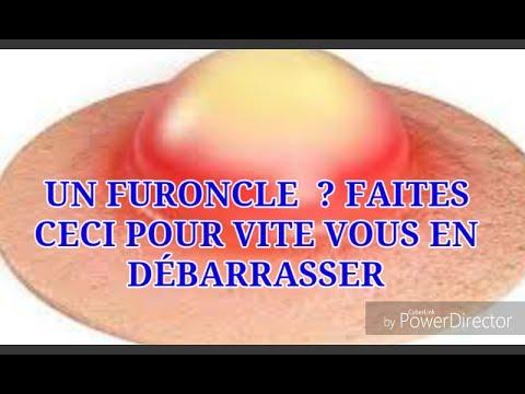 UN FURONCLE ? FAITES CECI POUR VITE VOUS EN DÉBARRASSER - YouTube