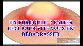 UN FURONCLE  ? FAITES CECI POUR VITE VOUS EN DÉBARRASSER