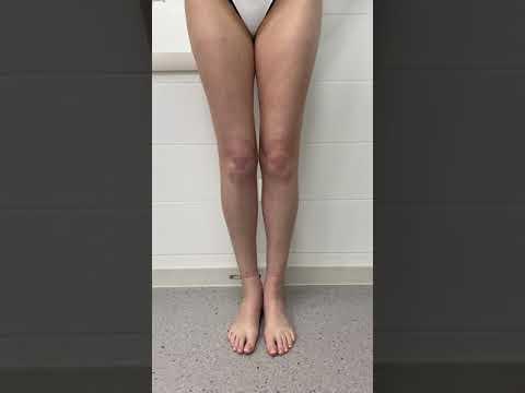 Круропластика (увеличение голени)