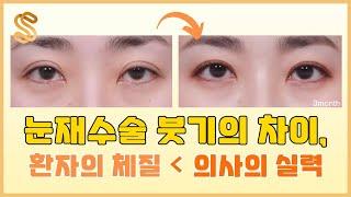 [MVP7성형외과] 눈재수술 붓기의 차이, 환자의 체질…