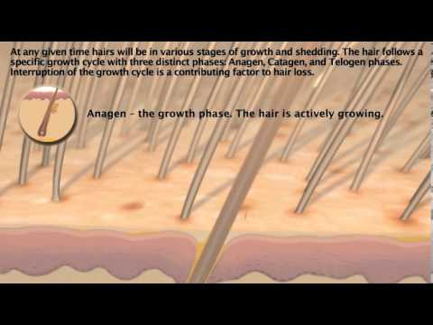 hair-demand-uses-capixyl-to-fight-hair-loss