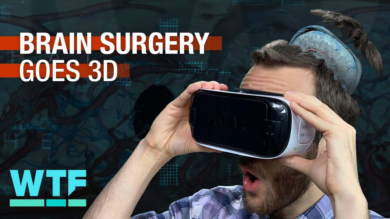 brain-surgery-goes-3d-what-the-future