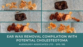 EAR WAX REMOVAL COMPILATION WITH POTENTIAL CHOLESTEOTOMA - EP195
