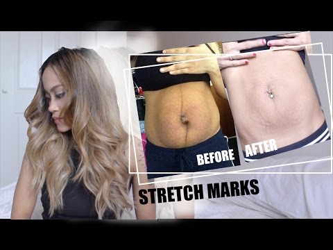 LETS TALK STRETCH MARKS & WHAT HAPPENED AFTER BIRTH!!!!