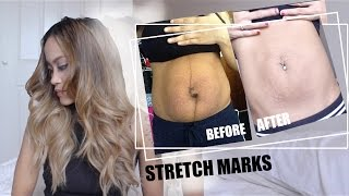 Lets Talk Stretch Marks What Happened After Birth