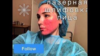 ФРАКЦИОННАЯ ЛАЗЕРНАЯ ШЛИФОВКА ЛИЦА