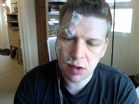 facial electrical stimulation