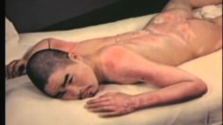Suppressed U.S. Military Film on the Medical Effects of the U.S. Bombing of Hiroshima and Nagasaki