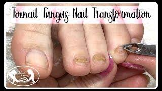 👣Pedicure Tutorial: Thinning Thick Toenail Fungus Nail Transformation 🔴✔️