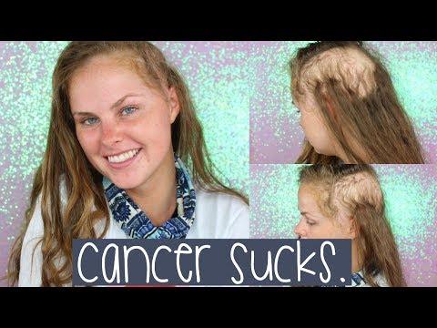 Cancer Sucks.