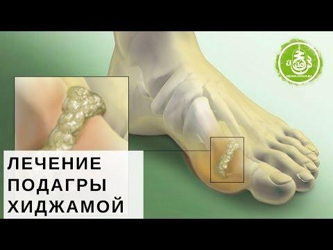 заболевание почек симптомы и лечение у женщин