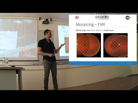 Retinal Image Registration through 3D Eye Modelling and Pose Estimation