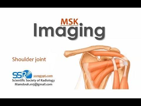Imaging of Shoulder joint I - Prof Dr  Mamdouh Mahfouz (In Arabic)
