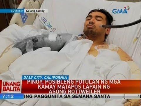 UB: Pinoy, Posibleng Putulan Ng Mga Kamay Matapos Lapain Ng Asong Rottweiler