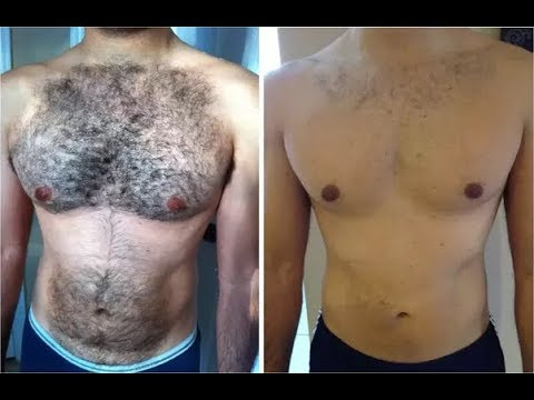 how to remove hair permanently from private parts naturally at home