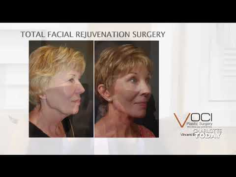 Facial Rejuvenation, Why Surgery?