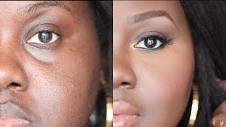 How to Conceal Deep Set Under Eyes: [Detailed talk through tutorial] | Chanel Boateng Thumbnail