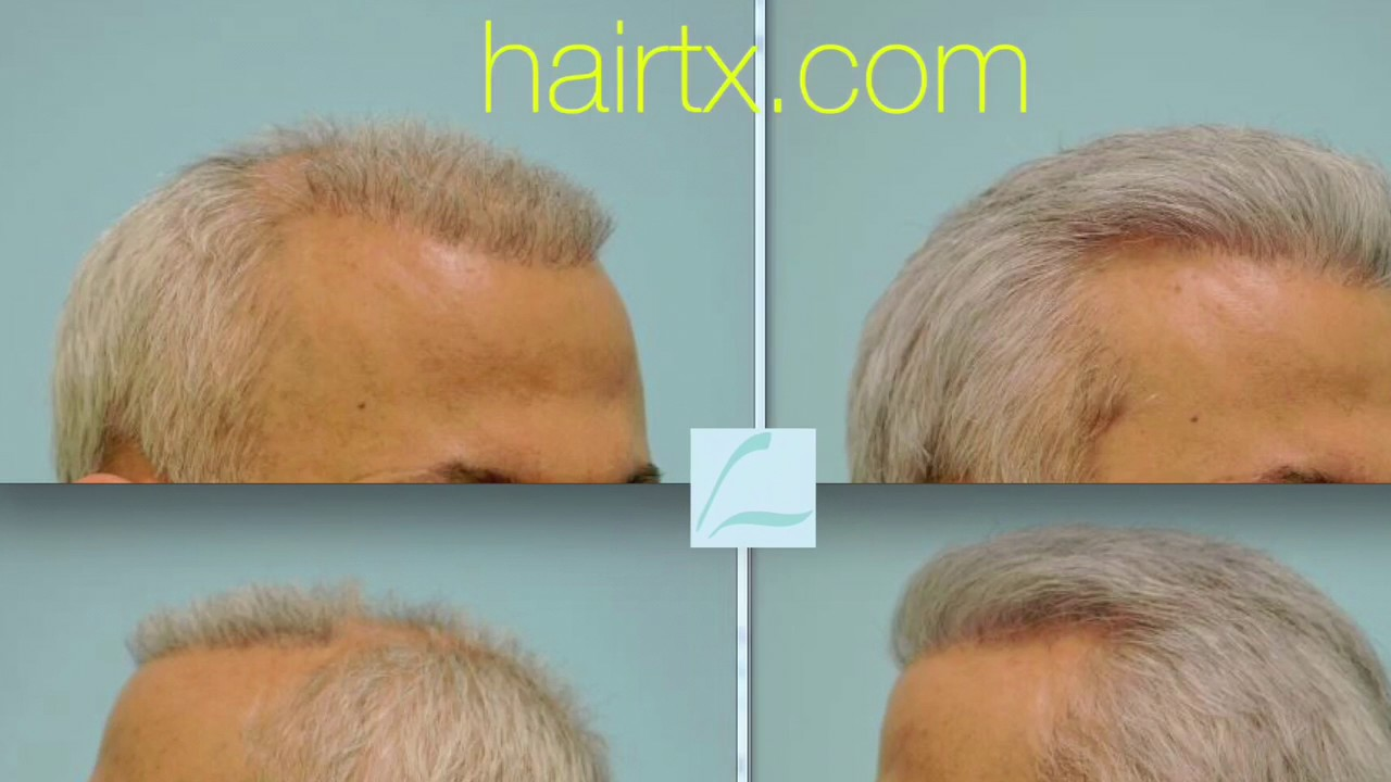 Corrective Hair Transplants Dallas, Corrective Hair Surgery