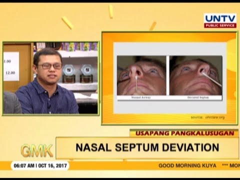 Balikong Ilong o Deviated Nasal Septum | Usapang Pangkalusugan