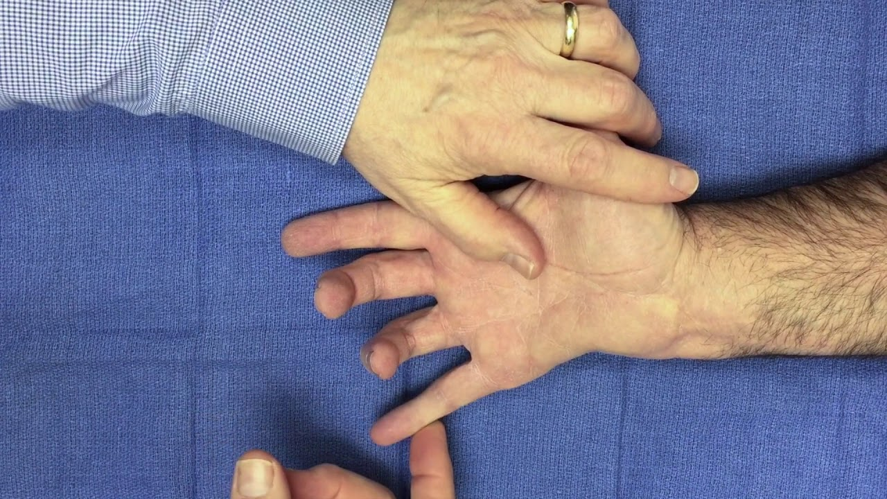 CUBITAL TUNNEL SYNDROME | Hand Surgery Source