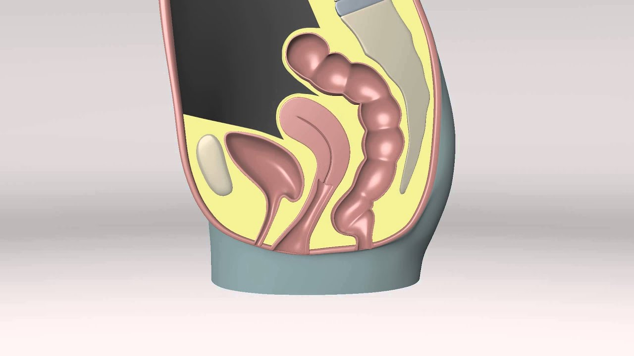 Incidence of adverse events after uterosacral colpopexy for uterovaginal and posthysterectomy vault prolapse