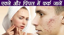 hqdefault - What Is Acne And Pimples