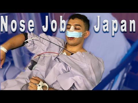 NOSE JOB IN JAPAN