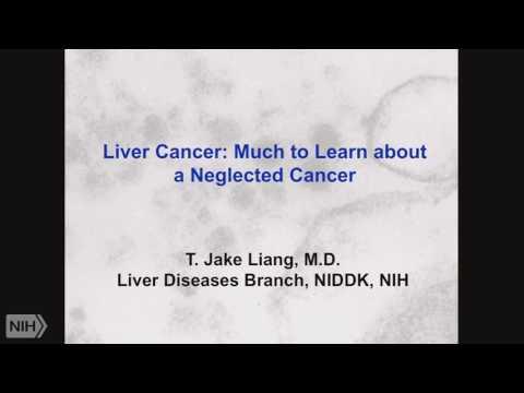 Demystifying Medicine 2017: Hepatocellular Cancer and Liver Transplantation