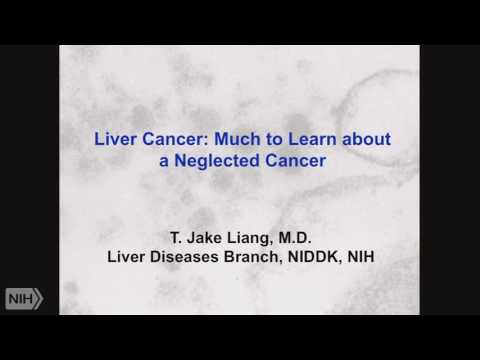 Demystifying Medicine 2017: Hepatocellular Cancer and Liver Transplantation