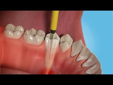 Root Canal Surgery | Most Common Dental Procedure | The Missing Mind