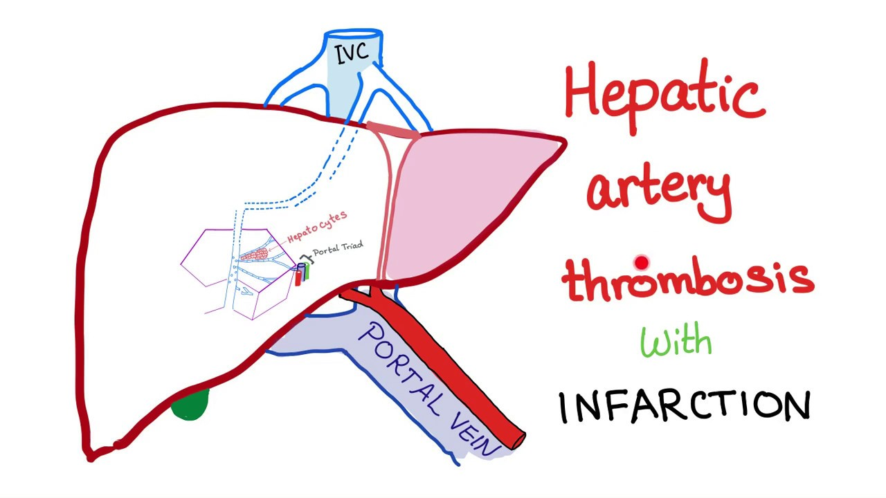 Hepatic Artery Thrombosis with infarction - YouTube
