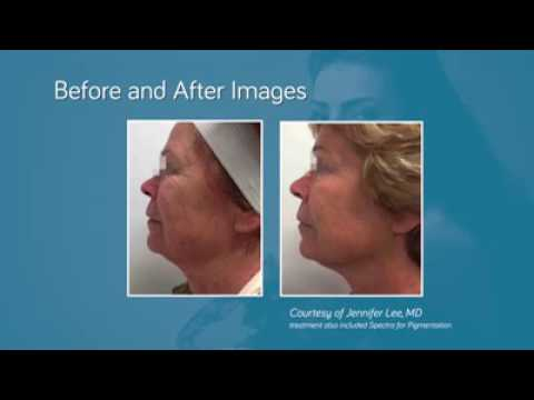 INFINI Genius for Skin Tightening & Acne Scarring West