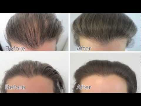 Female Hair Loss Treatment Amazing Results Before And