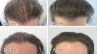 Female Hair Loss Treatment. Amazing results before and after Medici Capelli.