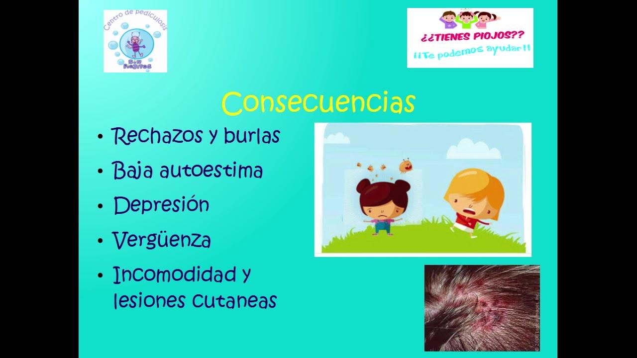 causas y tratamiento de pediculosis