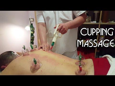 💆 Fire Cupping Massage ASMR no talking