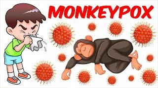 Monkeypox!