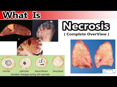 Фактор некроза опухоли — Википедия