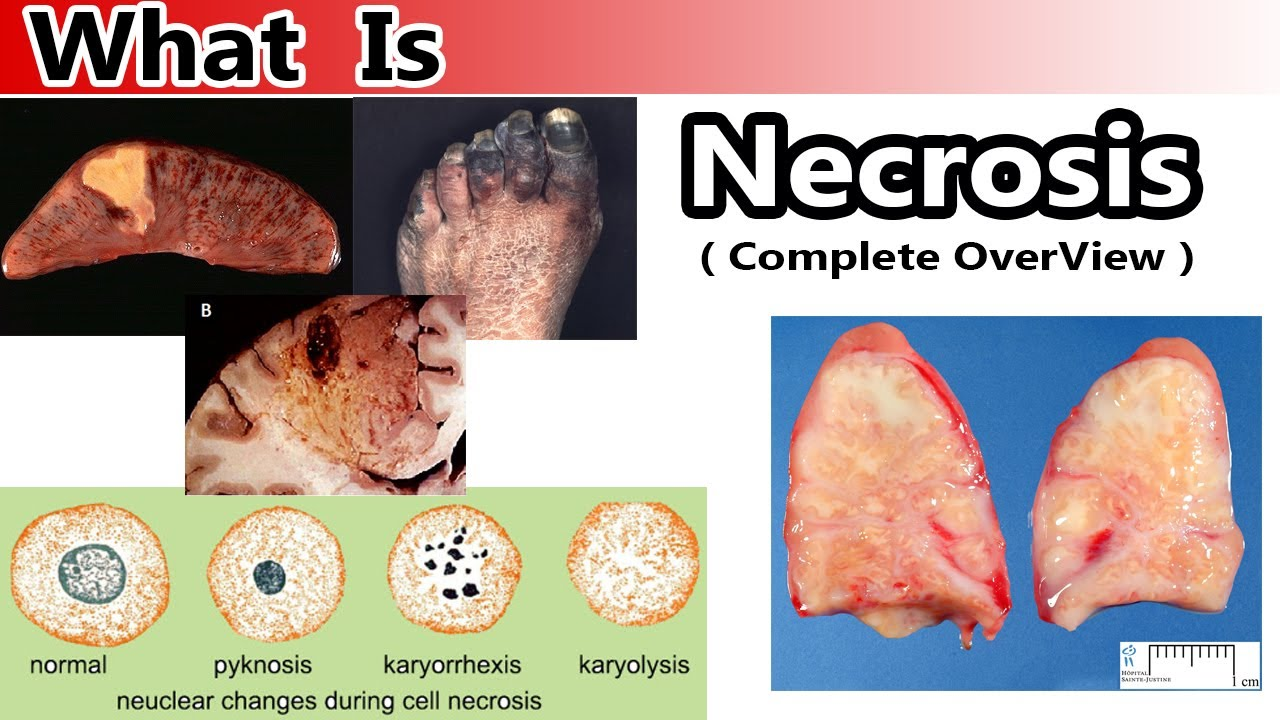 What is necrosis 16