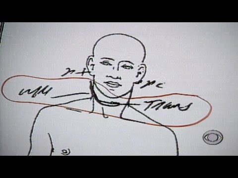 From the archives: Autopsy photos shown to O.J. Simpson jury